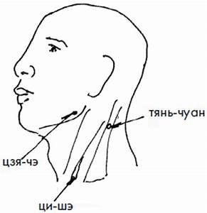 Лечение шума в голове медикаментами при шейном остеохондрозе