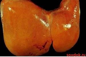Препараты при воспалении желчного пузыря и печени