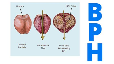 TURP vs. GreenLight Laser - Enlarged Prostate Treatment