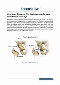 Clear  U0026 Unbiased Guide To Hip Replacement Surgery