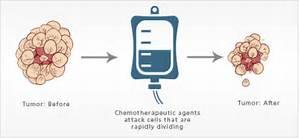 Chemotherapy - Virtual Medical Centre Chemotherapy