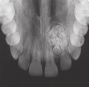 Compound Odontoma  Small Tooth