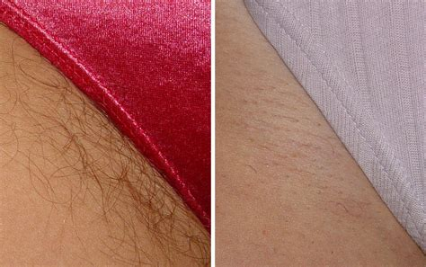 laser hair removal renew medical aesthetics cheshire