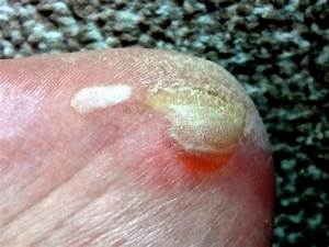 An Overview Of Hand Foot And Mouth  Hfm  Disease  U00ab Itchy