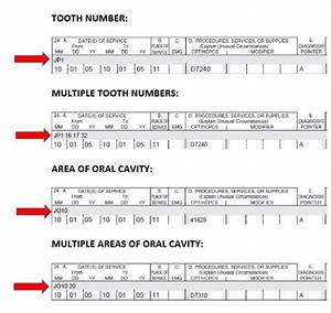 Jo And Jp Qualifiers  Tooth Numbers And Areas Of The Oral