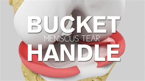 What Is A Bucket Handle Meniscus Tear?
