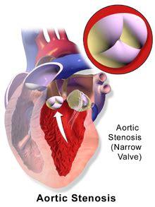 Aortic stenosis - Wikipedia
