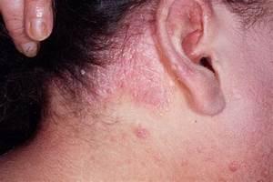 Plaque psoriasis elbow