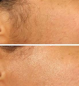 Как удалить волосы из бородавки
