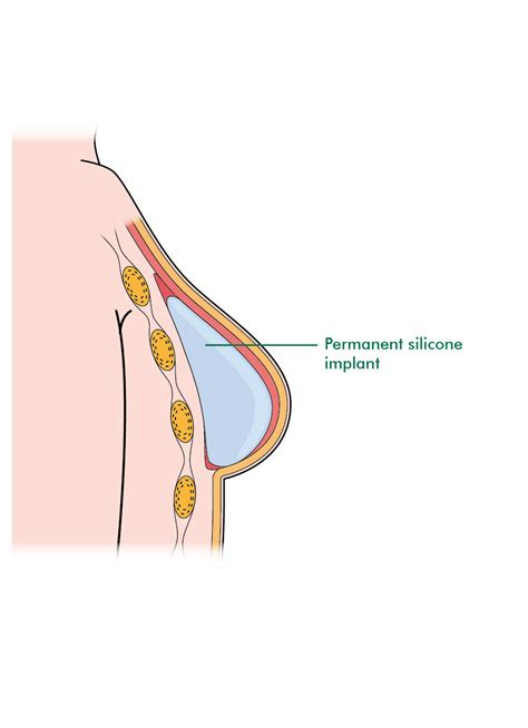 permanent breast forms breast reconstruction using an implant information and
