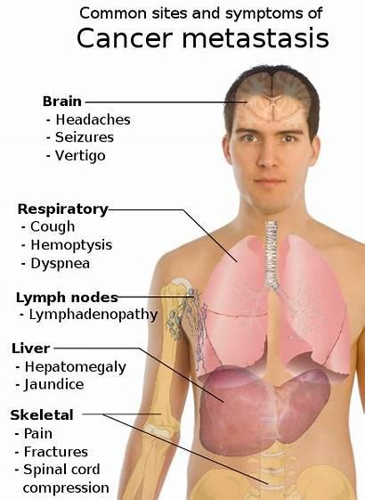 Cancer Symptoms Metastasis Svg Signs Disease Metastatic