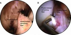 Arthroscopic View Of Partial Tears Of The Anterior