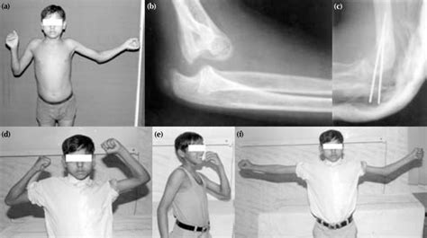 Patient 2: a 13-year-old boy with 4-month-old unreduced ...
