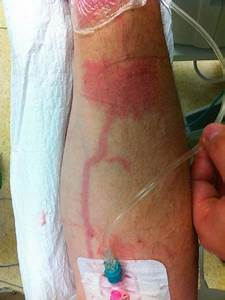 Jan Interactive  Phlebitis In Peripheral Venous Catheter Sites