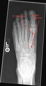 EM REMS | Tag Archive | lisfranc fracture