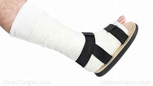 How Do You Treat Broken Bones  Fractures  Or Joint