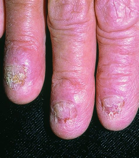 Nail Fungus Infection Fingernail