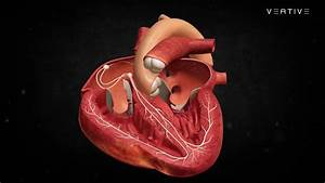 Heart Anatomy  Learn How Human Heart Works