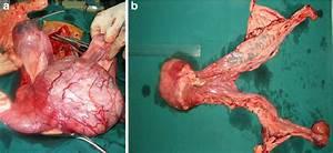 Vaginal Cavernous Hemangioma  A Vaginal Tumor Has Grown Into The