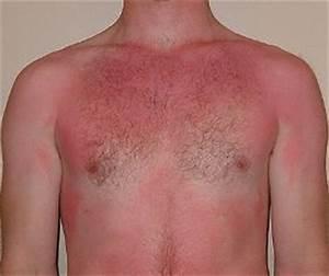 First degree burn treatment ~ Remedies for skin