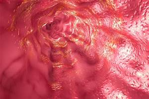 Mucosa Of Stomach With Peptic Ulcer And Bacterium