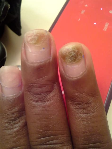 Bruised Nail Bed by Bruised Nail Beds Healthy Nail Growth Below The Damage
