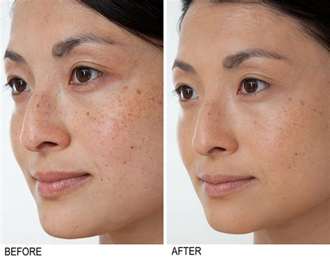 Clinical Results: Bakel Brightening Serum Before and After