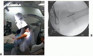 Intraoperative Patient Positioning And Fluoroscopy For