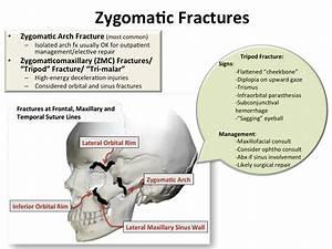 Back to Basics: Zygomatic Fractures | EM Daily
