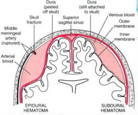 Difference Between Subdural and Epidural