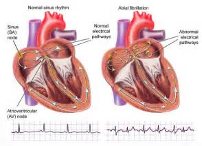 Atrial Fibrillation – Hamilton Cardiology Associates – New Jersey ...  Heart Diseases Arrhythmia