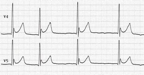 Ecg Changes In Hypothermia