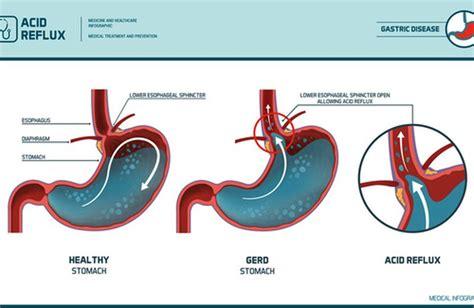alimentazione per esofagite da reflusso come prevenire l esofagite da reflusso cure naturali it