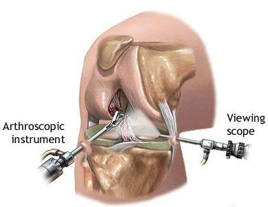 Tips for Arthroscopic Knee Surgery Recovery | New Health