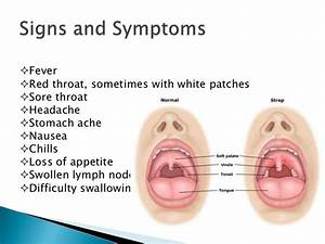 Causes Of Strep Throat Adults - networksmemo