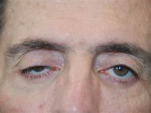 parts of eyelid palpebral ptosis types symptoms causes risk factors