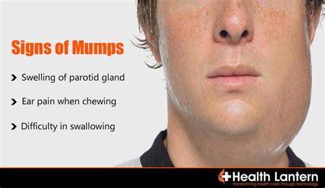 Mumps Symptoms and Signs