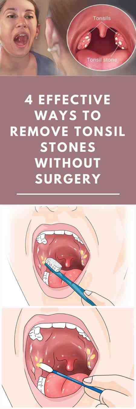 sore throat excess mucus spots tonsils pictures tews