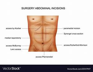 Surgical Incisions Of The Abdominal Cavity Vector Image