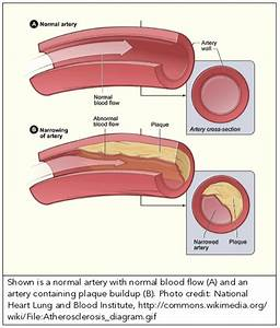 Of Blood Vessels Developing Atherosclerosis