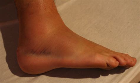 sprained ankle runners guide  diagnosis treatment