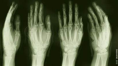Medical Desktop Backgrounds Wallpapers Ray Computer Skeleton