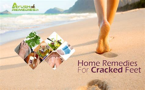 7 Home Remedies For Cracked Feet- Get Baby Soft Heels Ikea Bathroom Ideas Pictures Floor Tiles Vinyl Kohler Fixtures Small Design Uk Restoration Color For Bathrooms Colored Sinks How To Lay Flooring In