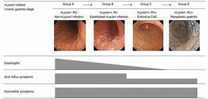 Assessment Of Gastroesophageal Reflux Disease By
