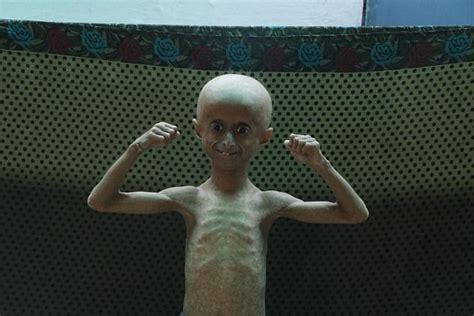 indian boy  suffers  progeria   pensioner