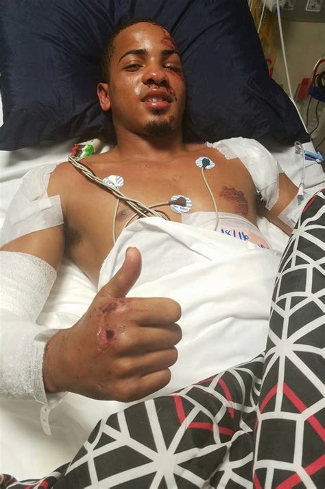 Photo: Felix Verdejo Banged Up From Accident, Recovering ...