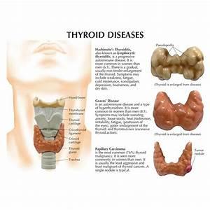 Anatomical Thyroid Disease Model