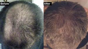 How To Make My Hair Grow Back My Hair Loss And Regrowth