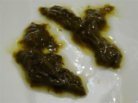 Mucus In Stool Diarrhea C Diff In Stool Mucus Pictures To