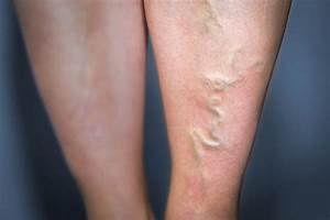 The Best Way to Treat Varicose Veins | Vitalize Magazine